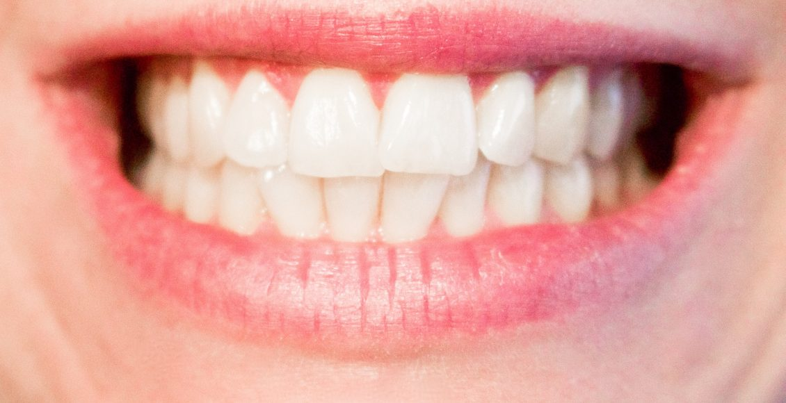 How to Whiten your Teeth without bleaching By Neha Gupta